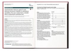 瑞士士卓曼种植体:大量临床研究报告的力